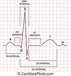 ritmo de corazón, normal, humano, seno, electrocardiograma