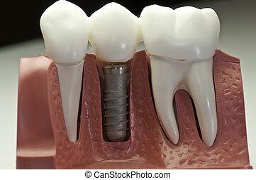 Un modelo de implante dental