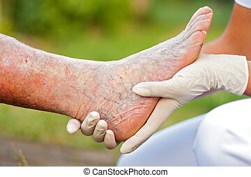 Una pierna vieja enferma